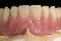 Encerado Prótesis Maquillada - Laboratorio Prótesis Dentales jacobo Chicheri
