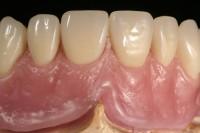 Enderado Dentadura Etética Maquillada - Laboratorio Prótesis Dentales Jacobo Chicheri