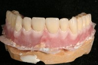 Prótesis acrílica removible maquillada - Laboratorio Protesis Dentales Jacobo Chicheri