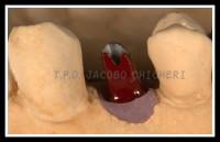 Pilar de Titanio Mecanizado Biomet 3i - Laboratorio Protesis Dentales Jacobo Chicheri