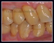 Implante finalizado con Emax Press - Laboratorio Protesis Dentales Jacobo Chicheri