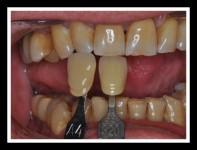 Prueba de Bizcocho - Laboratorio Protesis Dentales Jacobo chicheri